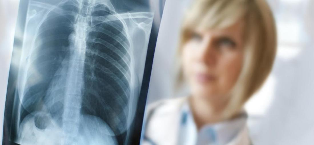 Ακτινοδιαγνωστικό - Γενικού Νοσοκομείου Κιλκίς